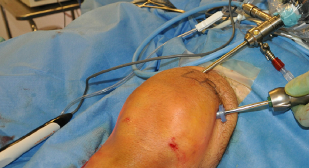 Figure-1-Arthroscopic-view-from-the-superomediale-portal-in-a-left-knee-with-the-patella